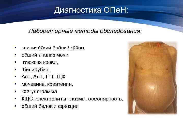 Диагностика ОПе. Н: Лабораторные методы обследования: • • • клинический анализ крови, общий анализ