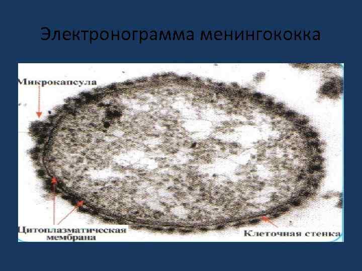 Электронограмма менингококка