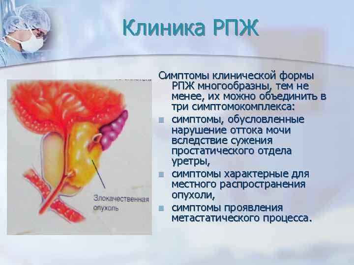 Рак простаты первые признаки симптомы и причины