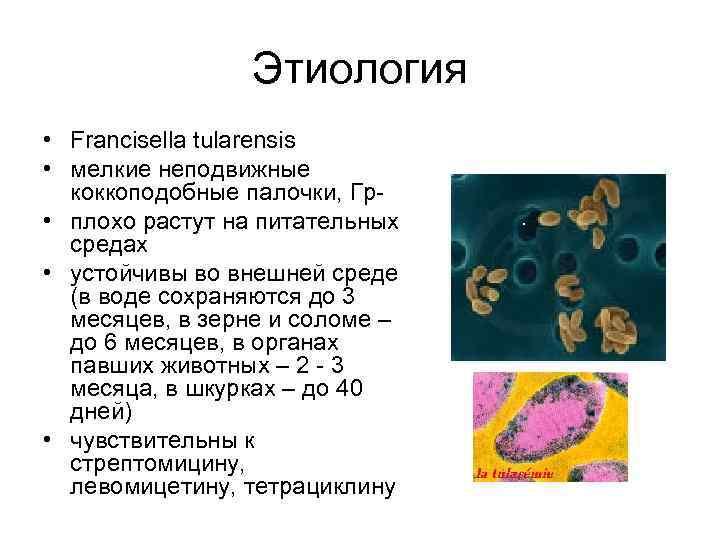 Этиология • Francisella tularensis • мелкие неподвижные коккоподобные палочки, Гр • плохо растут на