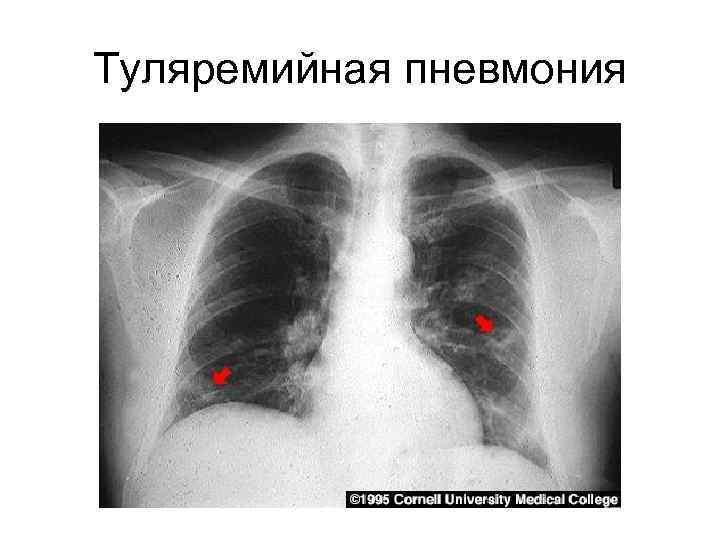 Туляремийная пневмония
