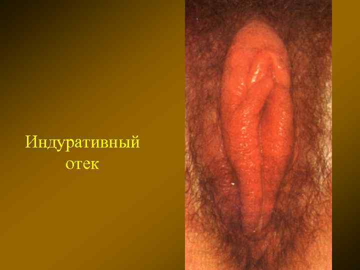 Заразила сифилисом проститутка