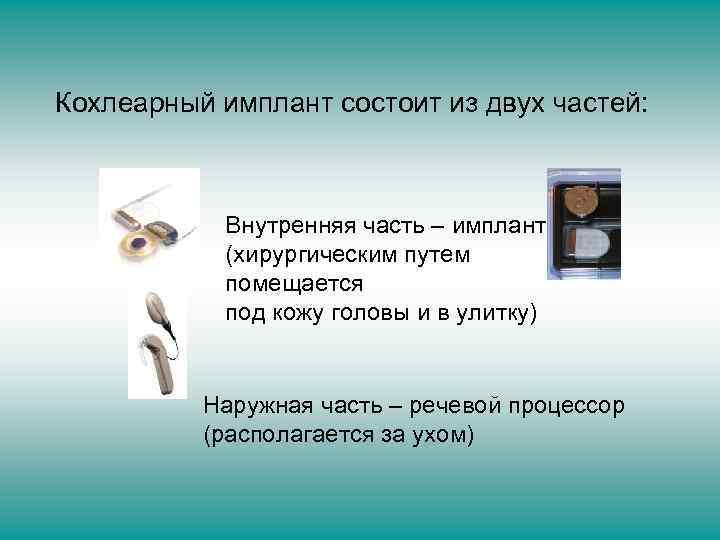 Кохлеарный имплант состоит из двух частей: Внутренняя часть – имплант (хирургическим путем помещается под