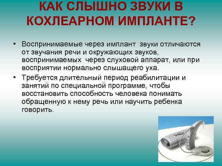 КАК СЛЫШНО ЗВУКИ В КОХЛЕАРНОМ ИМПЛАНТЕ? • Воспринимаемые через имплант звуки отличаются от звучания