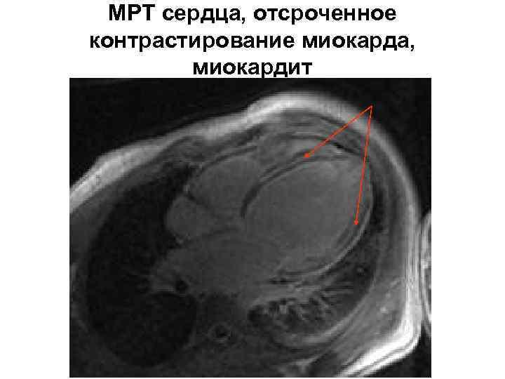 МРТ сердца, отсроченное контрастирование миокарда, миокардит