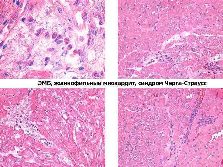 ЭМБ, эозинофильный миокардит, синдром Черга-Страусс