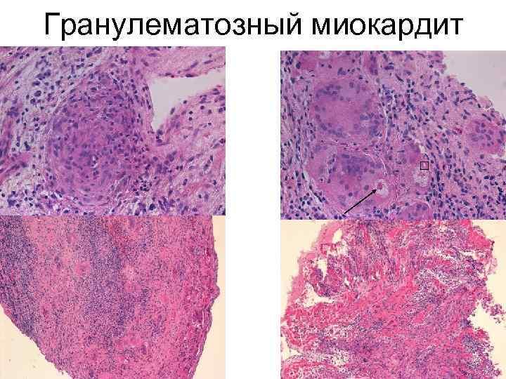 Гранулематозный миокардит