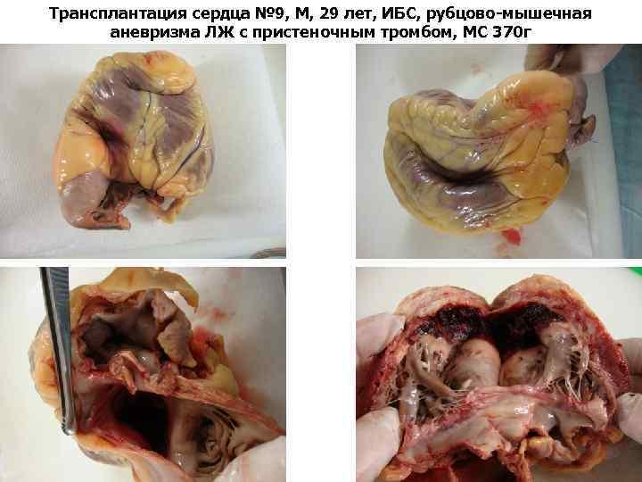 Трансплантация сердца № 9, М, 29 лет, ИБС, рубцово-мышечная аневризма ЛЖ с пристеночным тромбом,