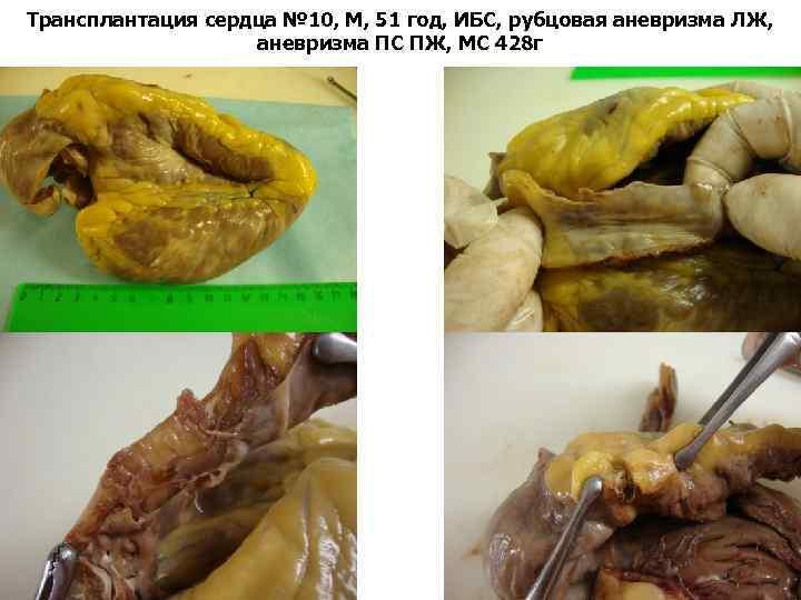 Трансплантация сердца № 10, М, 51 год, ИБС, рубцовая аневризма ЛЖ, аневризма ПС ПЖ,