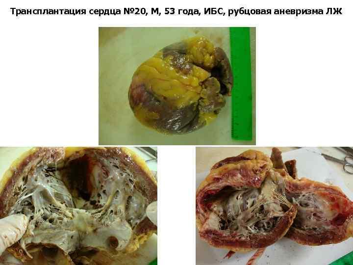 Трансплантация сердца № 20, М, 53 года, ИБС, рубцовая аневризма ЛЖ