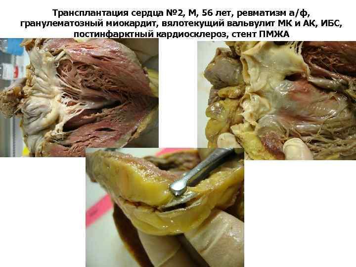 Трансплантация сердца № 2, М, 56 лет, ревматизм а/ф, гранулематозный миокардит, вялотекущий вальвулит МК