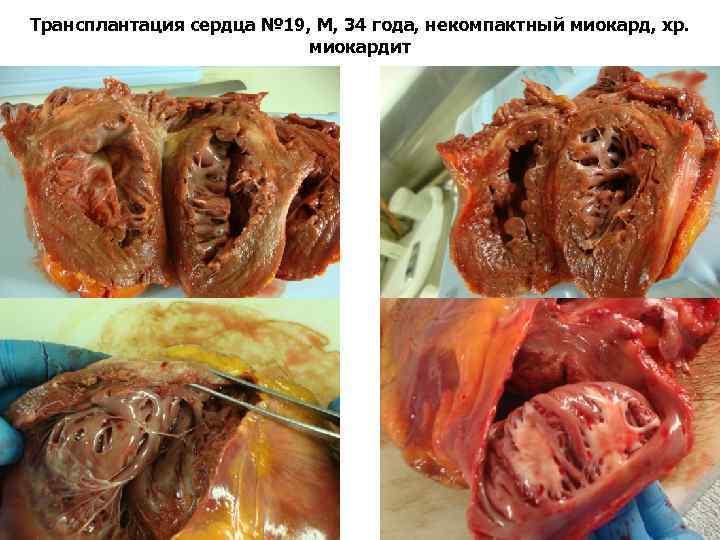 Трансплантация сердца № 19, М, 34 года, некомпактный миокард, хр. миокардит