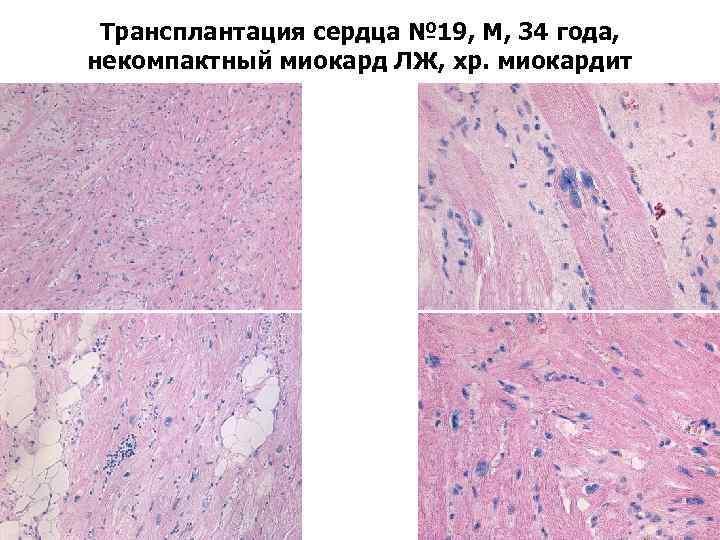 Трансплантация сердца № 19, М, 34 года, некомпактный миокард ЛЖ, хр. миокардит