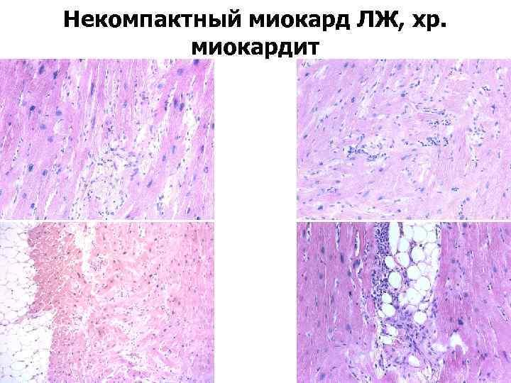 Некомпактный миокард ЛЖ, хр. миокардит
