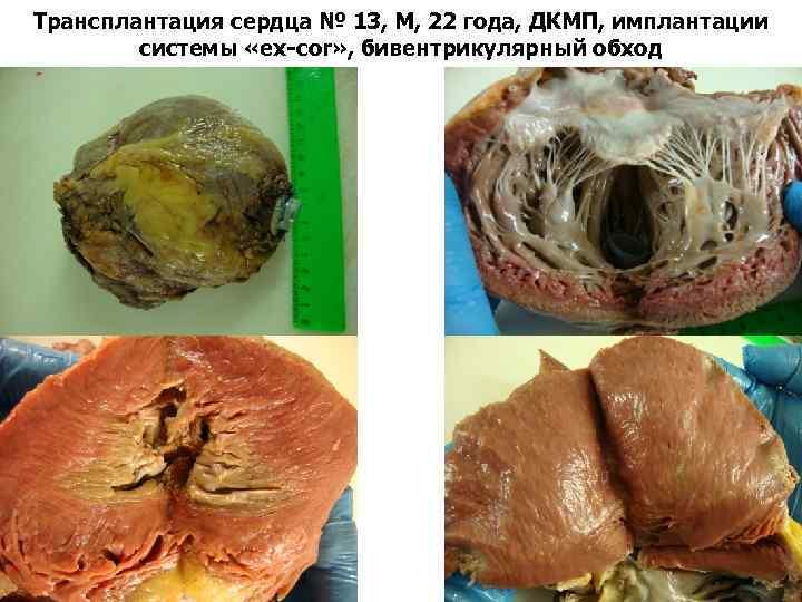 Трансплантация сердца № 13, М, 22 года, ДКМП, имплантации системы «ex-cor» , бивентрикулярный обход
