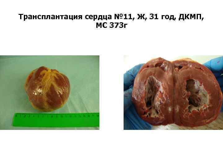 Трансплантация сердца № 11, Ж, 31 год, ДКМП, МС 373 г