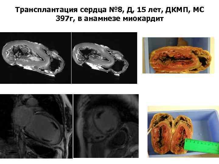 Трансплантация сердца № 8, Д, 15 лет, ДКМП, МС 397 г, в анамнезе миокардит