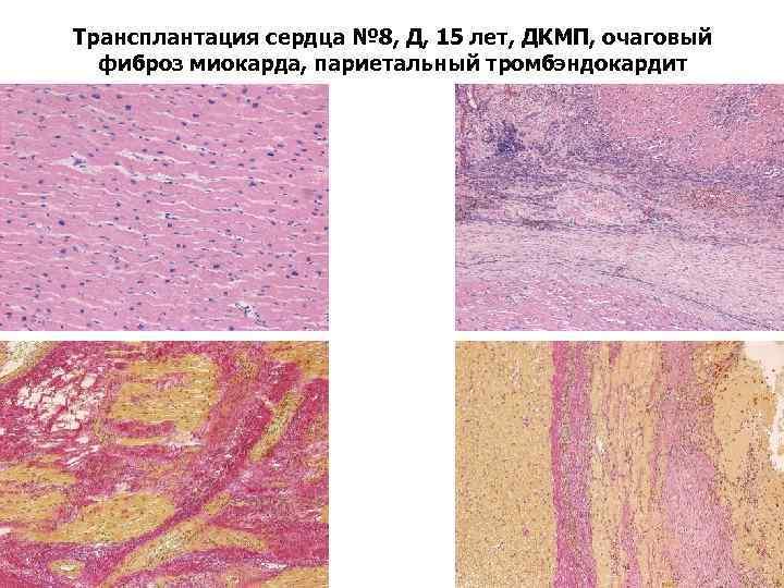 Трансплантация сердца № 8, Д, 15 лет, ДКМП, очаговый фиброз миокарда, париетальный тромбэндокардит