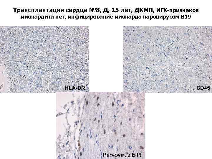 Трансплантация сердца № 8, Д, 15 лет, ДКМП, ИГХ-признаков миокардита нет, инфицирование миокарда паровирусом