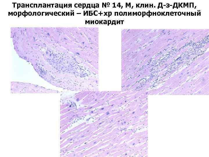 Трансплантация сердца № 14, М, клин. Д-з-ДКМП, морфологический – ИБС+хр полиморфноклеточный миокардит