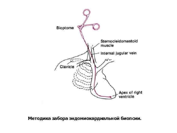 Методика забора эндомиокардиальной биопсии.