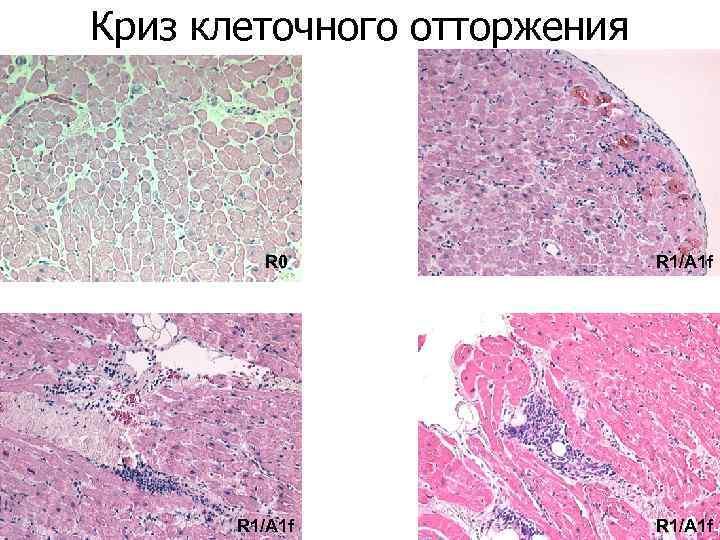 Криз клеточного отторжения R 0 R 1/A 1 f