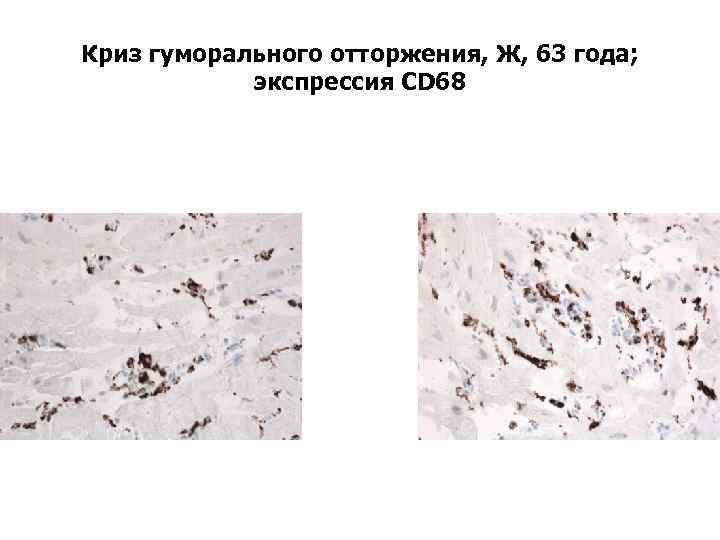 Криз гуморального отторжения, Ж, 63 года; экспрессия CD 68