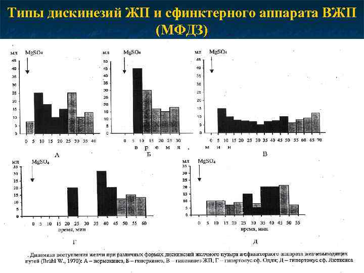 Типы дискинезий ЖП и сфинктерного аппарата ВЖП (МФДЗ)