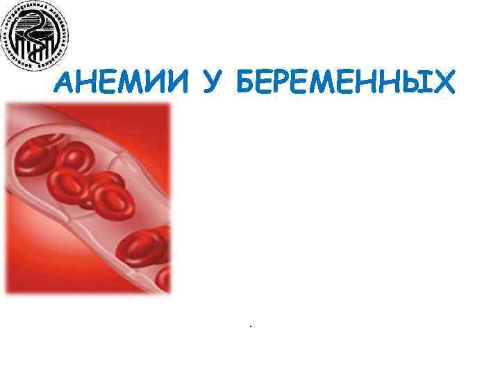 АНЕМИИ У БЕРЕМЕННЫХ .