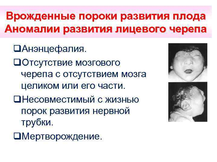 Врожденные пороки развития плода Аномалии развития лицевого черепа q. Анэнцефалия. q. Отсутствие мозгового черепа