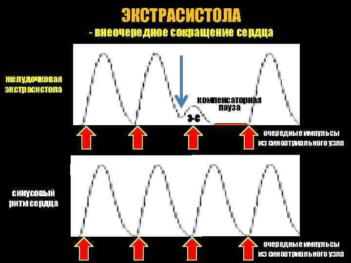 ЭКСТРАСИСТОЛА - внеочередное сокращение сердца желудочковая экстрасистола компенсаторная пауза Э-С очередные импульсы из синоатриального