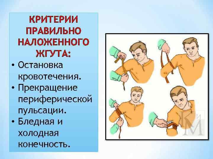 КРИТЕРИИ ПРАВИЛЬНО НАЛОЖЕННОГО ЖГУТА: • Остановка кровотечения. • Прекращение периферической пульсации. • Бледная и