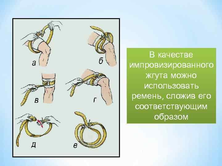 В качестве импровизированного жгута можно использовать ремень, сложив его соответствующим образом