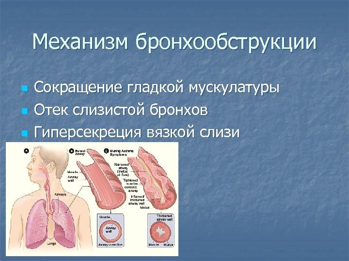 Механизм бронхообструкции n n n Сокращение гладкой мускулатуры Отек слизистой бронхов Гиперсекреция вязкой слизи