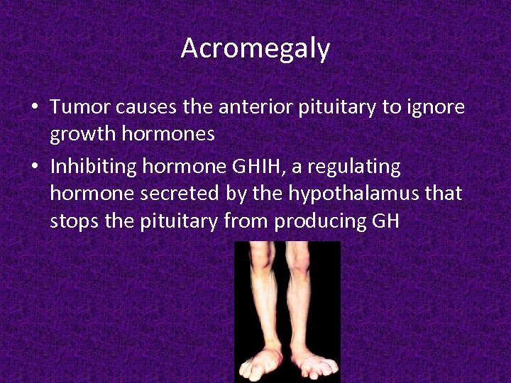 Acromegaly • Tumor causes the anterior pituitary to ignore growth hormones • Inhibiting hormone