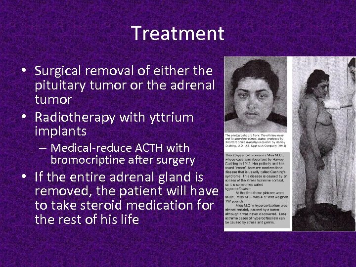 Treatment • Surgical removal of either the pituitary tumor or the adrenal tumor •