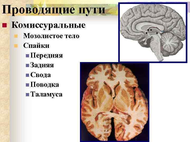 Проводящие пути n Комиссуральные n n Мозолистое тело Спайки n Передняя n Задняя n