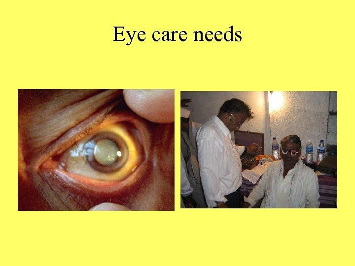 Eye care needs
