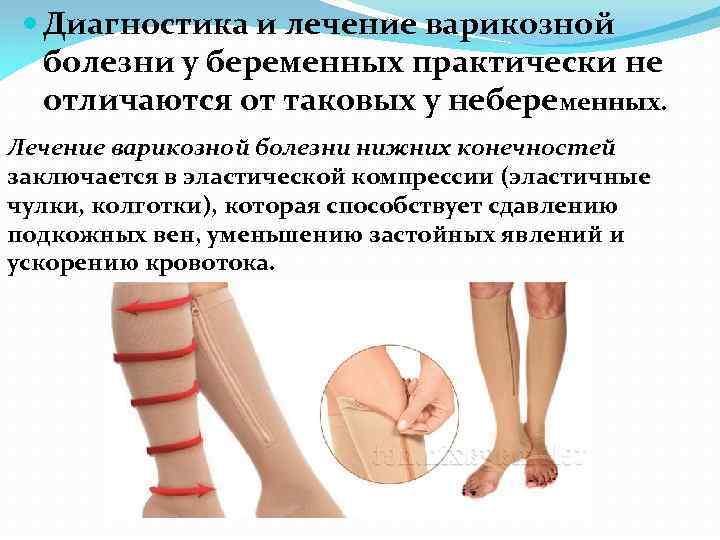 Тоннельный синдром у беременных 17