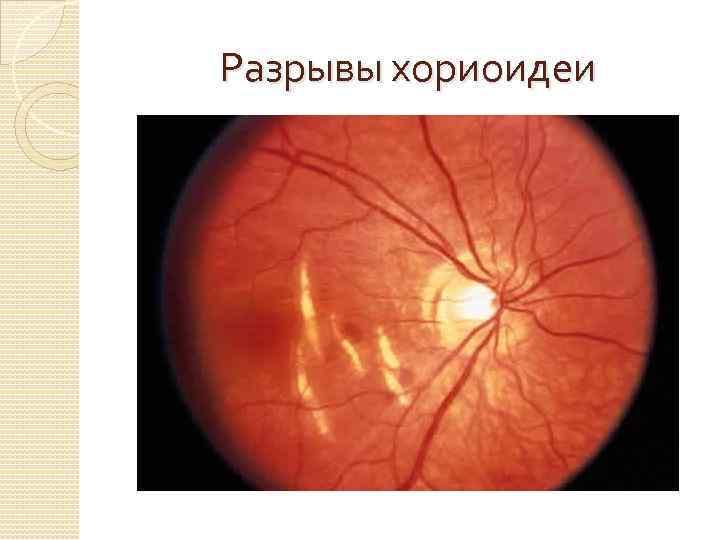 разрыв сосудистой оболочки глаза фото них восторгом