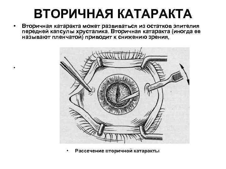 ВТОРИЧНАЯ КАТАРАКТА • Вторичная катаракта может развиваться из остатков эпителия передней капсулы хрусталика. Вторичная