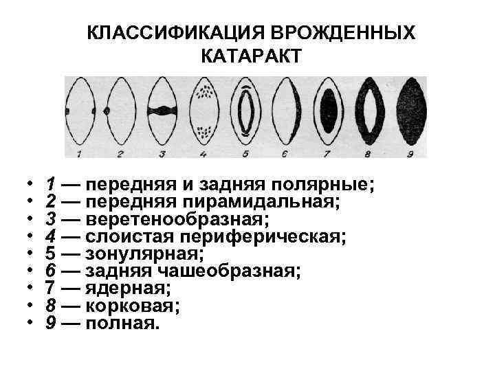 КЛАССИФИКАЦИЯ ВРОЖДЕННЫХ КАТАРАКТ • • • 1 — передняя и задняя полярные; 2 —