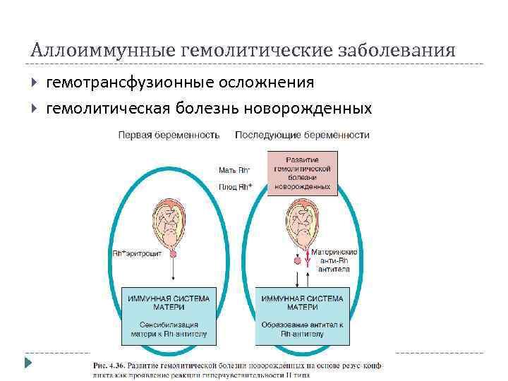 Аллоиммунные гемолитические заболевания гемотрансфузионные осложнения гемолитическая болезнь новорожденных