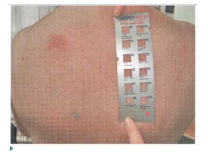 Аппликацонные пробы Исп-я для диагностики ГЗТ Применяются тест с-мы в виде пластин с аллергенами