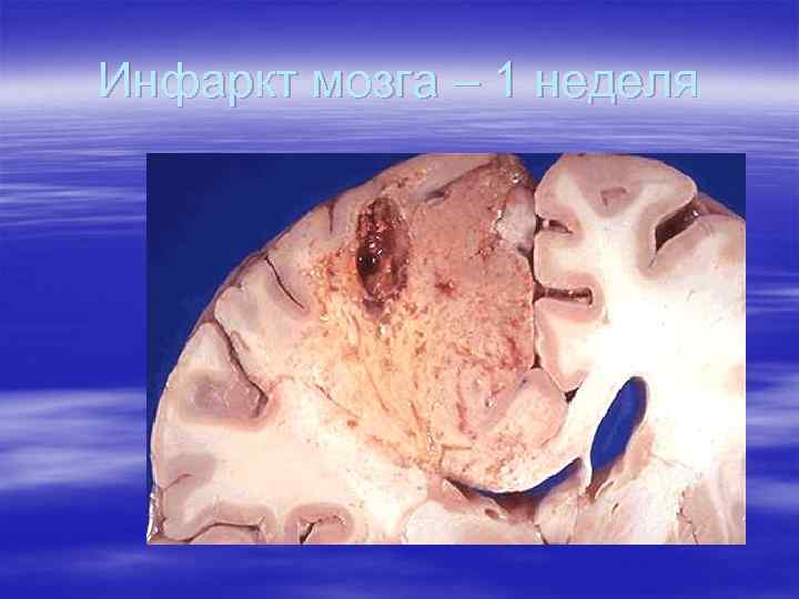 Инфаркт мозга – 1 неделя