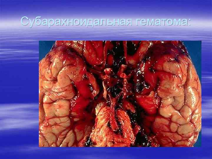 Субарахноидальная гематома: