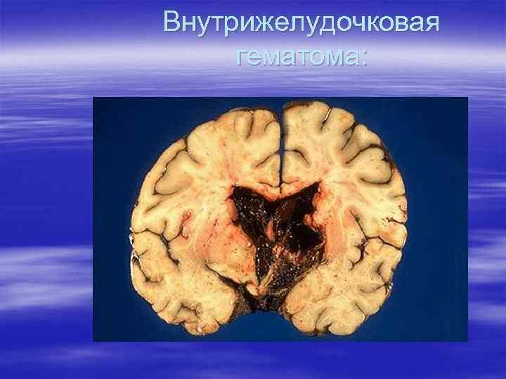 Внутрижелудочковая гематома: