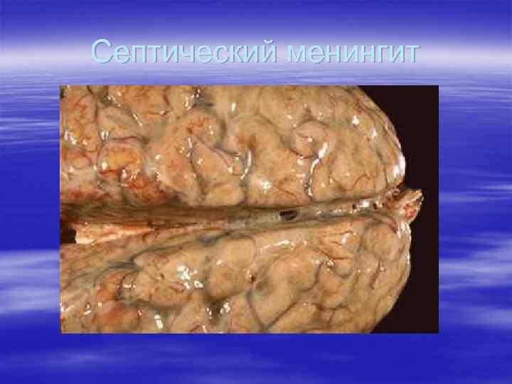 Септический менингит