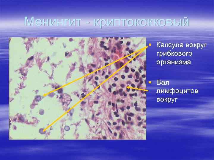 Менингит - криптококковый § Капсула вокруг грибкового организма § Вал лимфоцитов вокруг
