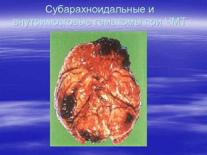 Субарахноидальные и внутримозговые гематомы при ЧМТ